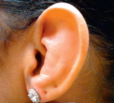 Auricular Cartilage - an overview | ScienceDirect Topics