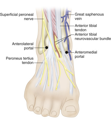 Ankle Arthrodesis An Overview ScienceDirect Topics