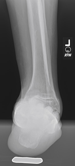 Ankle Arthrodesis - an overview | ScienceDirect Topics