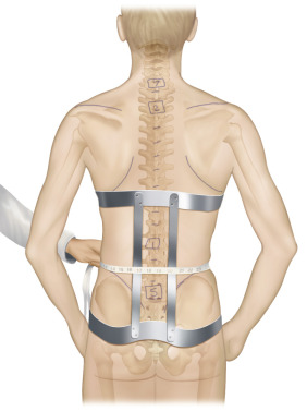 Spine Orthosis - an overview | ScienceDirect Topics