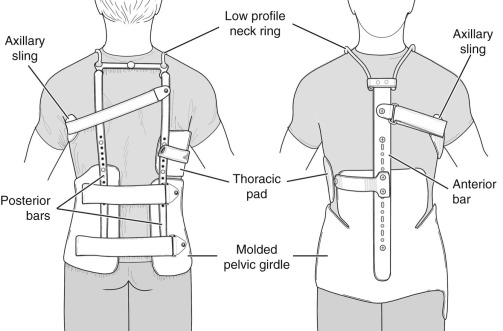Principles and Components of Spinal Orthoses - ScienceDirect