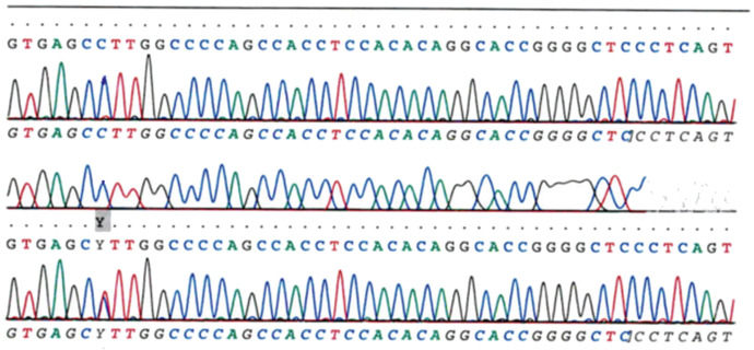 Sanger Sequencing - an overview | ScienceDirect Topics