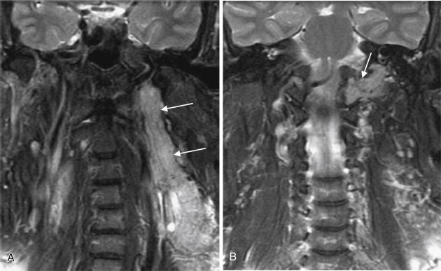 Jugular Foramen An Overview Sciencedirect Topics