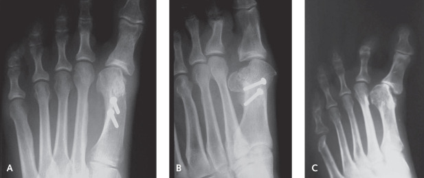 Metatarsal Osteotomy - an overview | ScienceDirect Topics