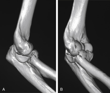 Radius Head Fracture - an overview | ScienceDirect Topics
