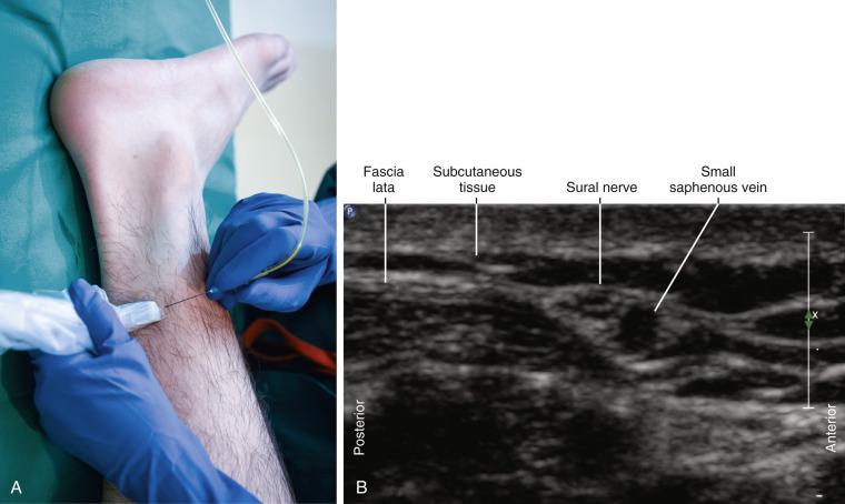 Sural Nerve Block Sciencedirect
