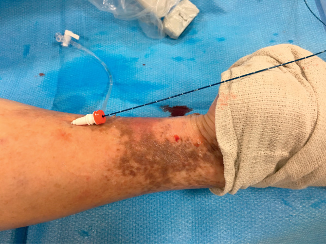 Great Saphenous Vein - an overview | ScienceDirect Topics