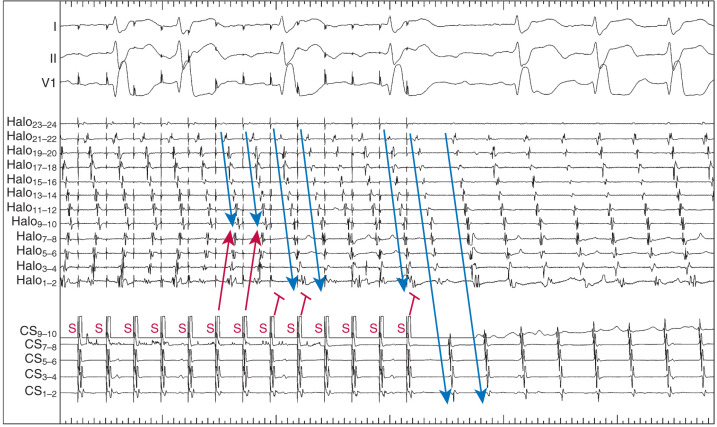 Programmed Electrical Stimulation - an overview