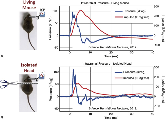 Head Motions Offer Better Way To Detect >> Head Movement An Overview Sciencedirect Topics