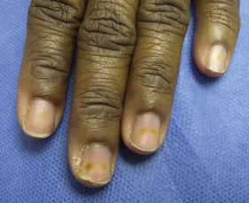 Onycholysis - an overview | ScienceDirect Topics