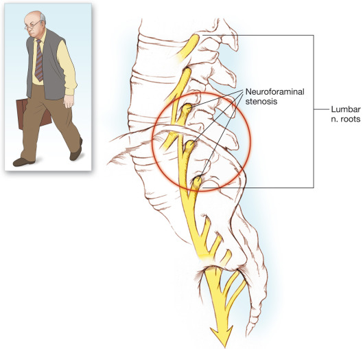 Spinal Stenosis - an overview | ScienceDirect Topics