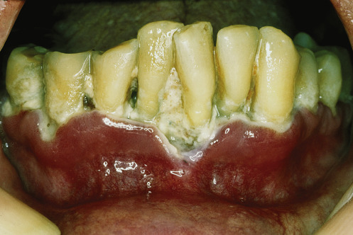 Acute Necrotizing Ulcerative Gingivitis - an overview