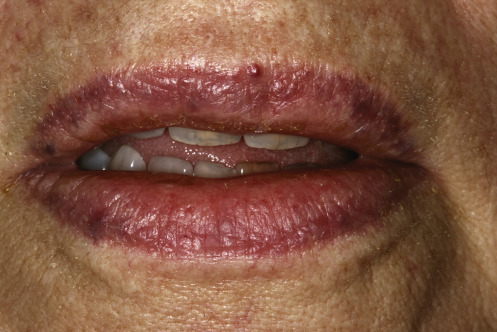 Cheilitis - an overview | ScienceDirect Topics