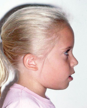 Mouth Breathing - an overview | ScienceDirect Topics