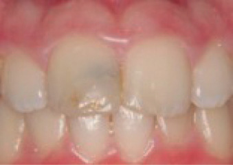 Pulp Therapy for the Young Permanent Dentition - ScienceDirect