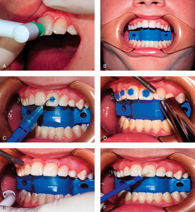 Treatment Planning and Management of Orthodontic Problems