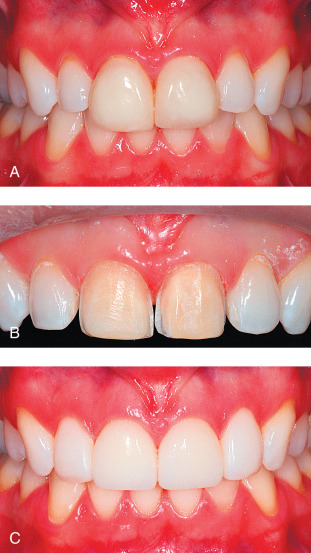 Tooth Discoloration - an overview | ScienceDirect Topics