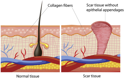 Scar Tissue - an overview | ScienceDirect Topics