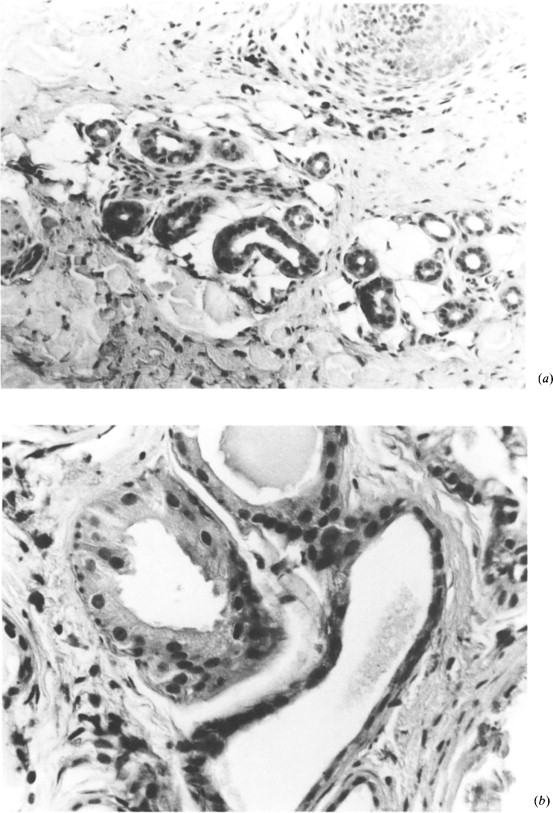 S 100 Protein An Immunohistochemical Study Of Fetal Eccrine Sweat