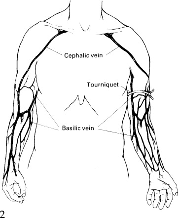 the use of cephalic vein as a conduit sciencedirect