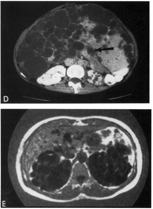 Renal cystic disease in the elderly - ScienceDirect