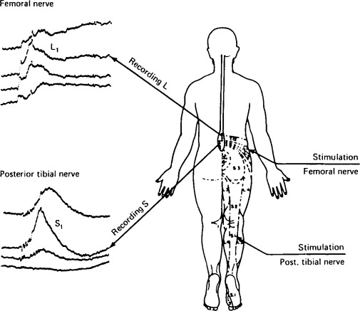 Deafferentation syndromes and dorsal root entry zone lesions