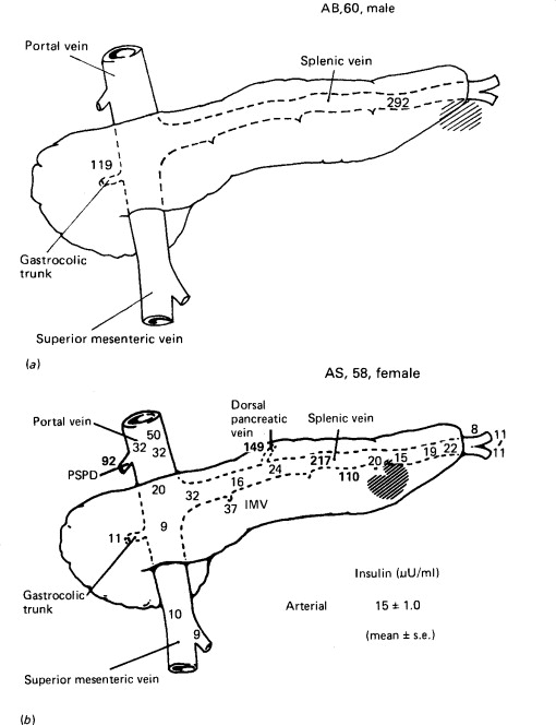 localization of gastroentero pancreatic gep tumors sciencedirect Men's Inner Arm Veins schematic diagrams of venous drainage patterns which can lead to erroneous localization of a tumor a a tumor in the tail of the pancreas draining via the