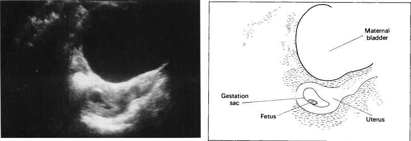 OBSTETRIC ULTRASOUND - ScienceDirect
