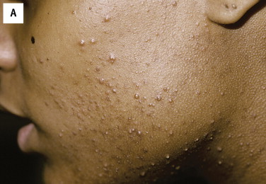 Pimples - an overview | ScienceDirect Topics