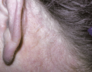 Seborrheic Dermatitis - an overview | ScienceDirect Topics
