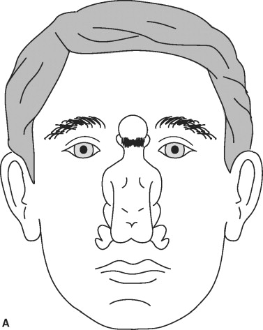 Nose - an overview | ScienceDirect Topics