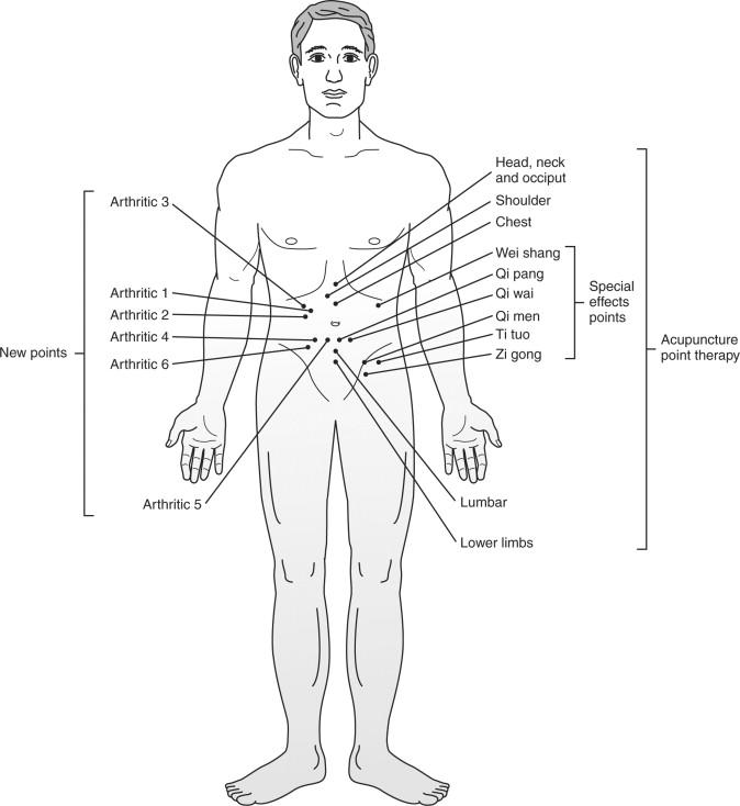 Pericardium Meridian - an overview   ScienceDirect Topics