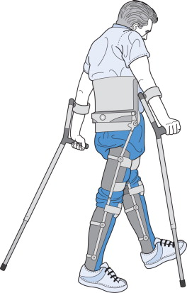 Hip Knee Ankle Foot Orthosis An Overview Sciencedirect