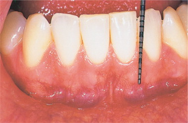 Gingiva An Overview Sciencedirect Topics