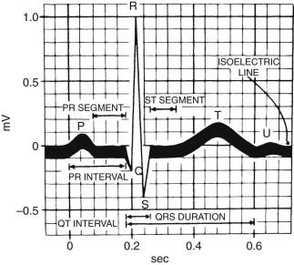 Normal ECG - an overview | ScienceDirect Topics