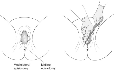 Episiotomy - an overview | ScienceDirect Topics