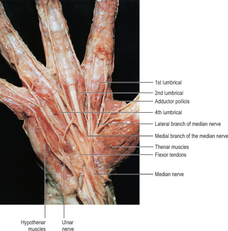 Palmaris Brevis Muscle - an overview   ScienceDirect Topics