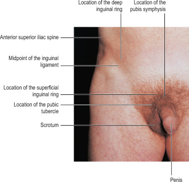Removal of the testicles in men; indications for genital...