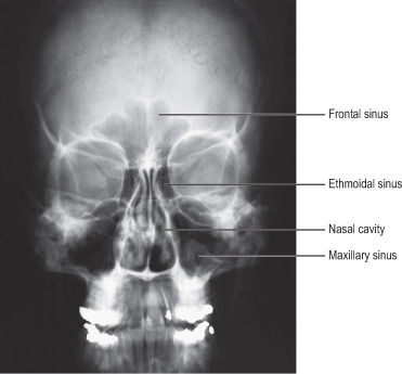 Maxillary Sinus - an overview | ScienceDirect Topics