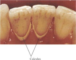 Tooth Calculus - an overview | ScienceDirect Topics