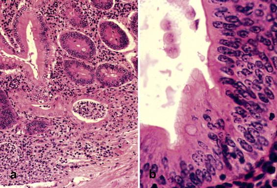Fișier:Giardia muris trophozoite SEM 11643.jpg