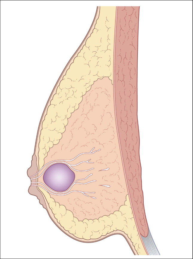 Thrombophlebitis of Breast - an overview | ScienceDirect Topics