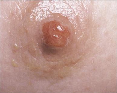Seborrhoeic Dermatitis - an overview | ScienceDirect Topics