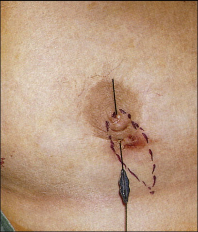 Fistulectomy - an overview   ScienceDirect Topics