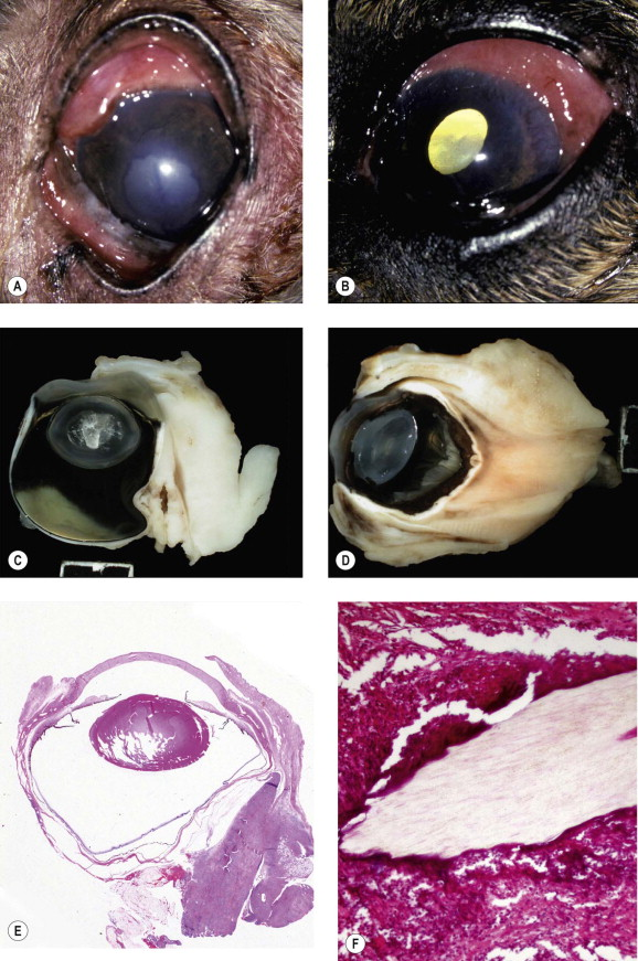 Panophthalmitis - an overview | ScienceDirect Topics