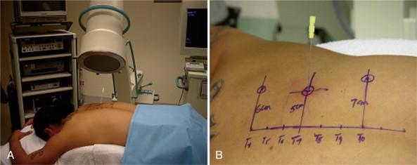 Digital Fluoroscopy - an overview   ScienceDirect Topics