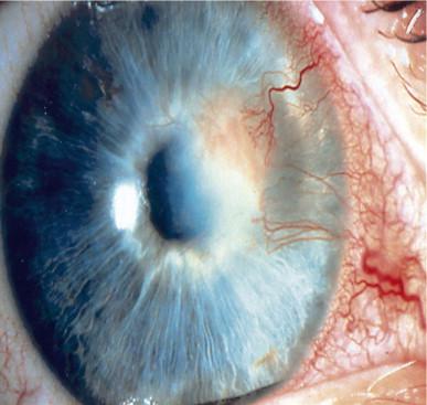 Herpes Simplex Keratitis - an overview   ScienceDirect Topics