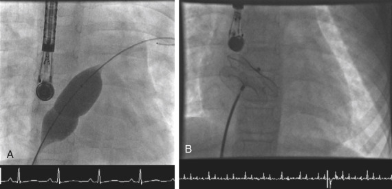 Atrial Septal Occluder - an overview | ScienceDirect Topics