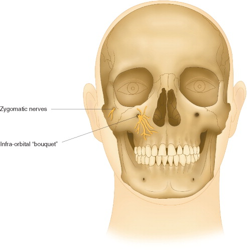 Zygomatic Process An Overview Sciencedirect Topics