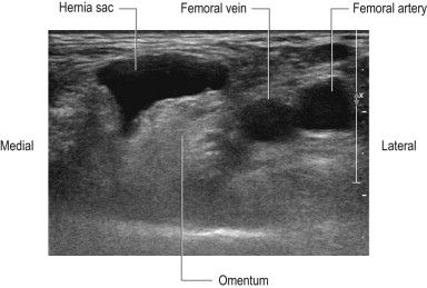Femoral Hernia - an overview | ScienceDirect Topics